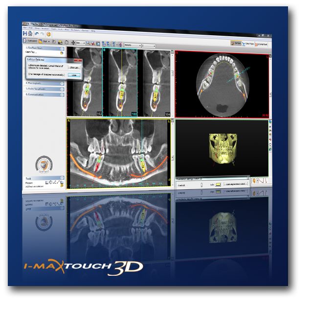 I -Max Touch 3D Digital Panoramic Dental X-Ray System