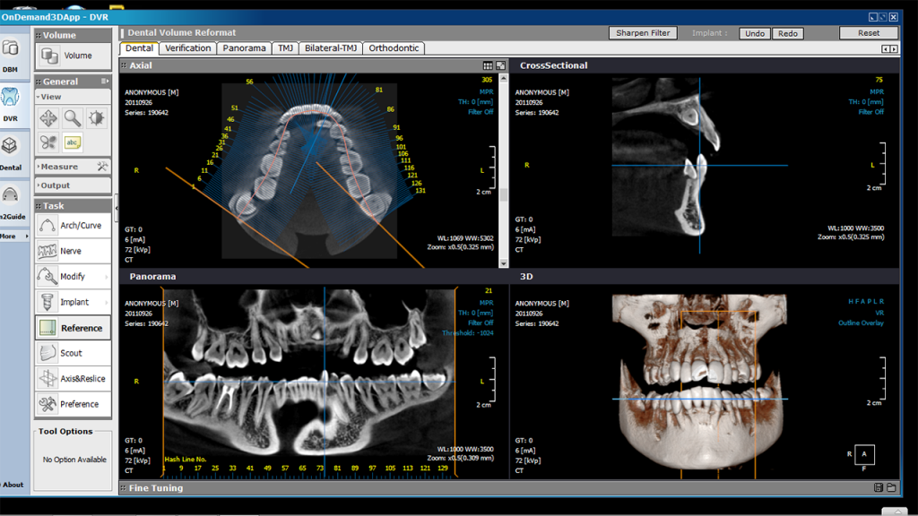 Rotograph EVO 3D CBCT 3-in-1 Imaging Unit