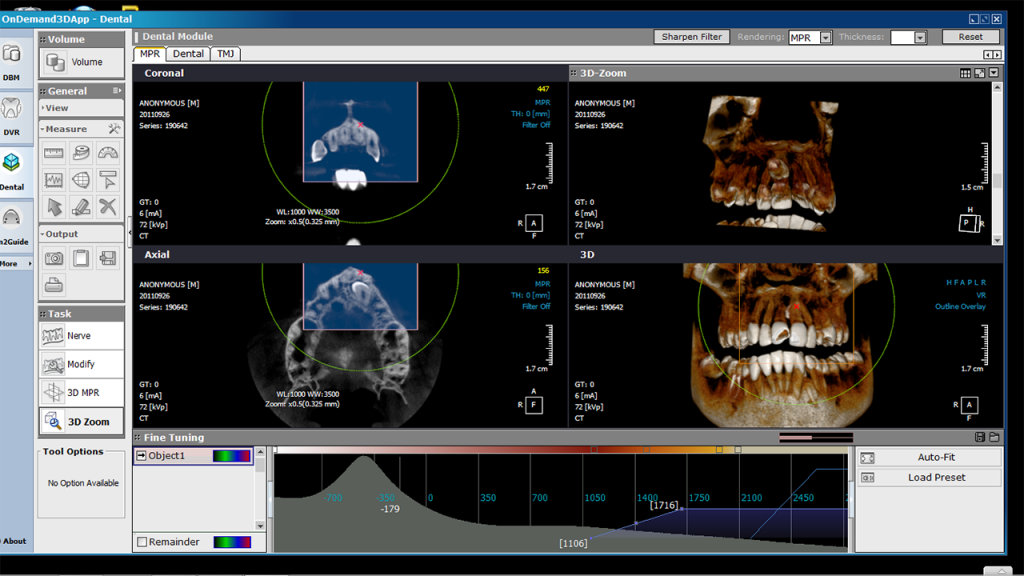 Rotograph EVO 3D CBCT 3-in-1 Imaging System