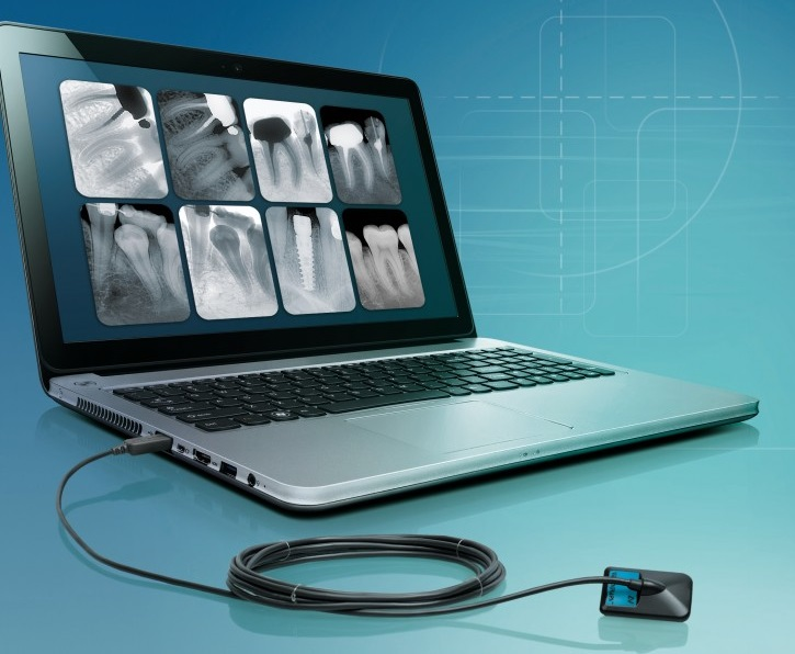 Videograph HD IntraOral Digital X-Ray Sensors