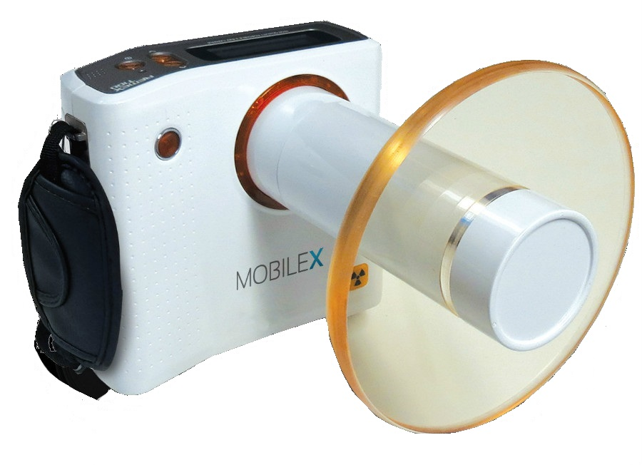 MobileX Hand held X-Ray Unit