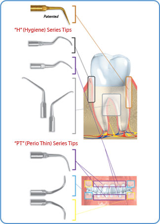 Perio Ultrasonic Piezo Scaler Tips
