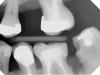 Quick Ray Usb Imaging X-Ray sensors